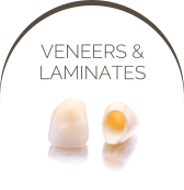 Veneers & Laminates